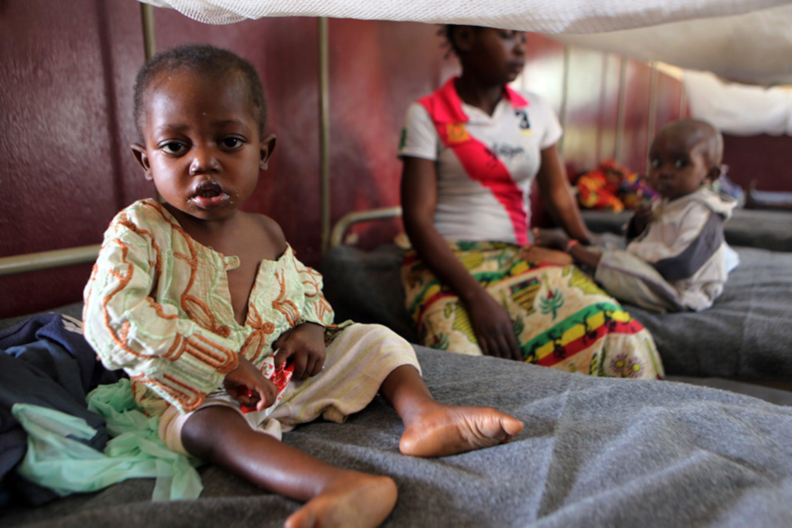 Un bambino ricoverato nel centro terapeutico nutrizionale dell'Ospedale pediatrico di Bangui, capitale della Repubblica Centrafricana - ©UNICEF/NYHQ2013-1289/Terdjman