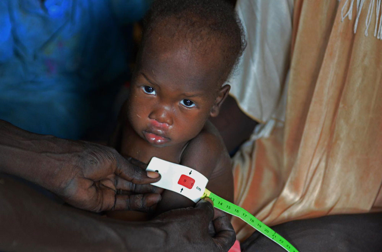 Il colore rosso del braccialetto MUAC rivela che la piccola Nyarony, 3 anni, è affetta da malnutrizione grave. La famiglia di Nyarony è sfollata in un accampamento presso la base ONU di Malakal, nel Sud Sudan - ©UNICEF/NYHQ2014-1415/Nesbitt