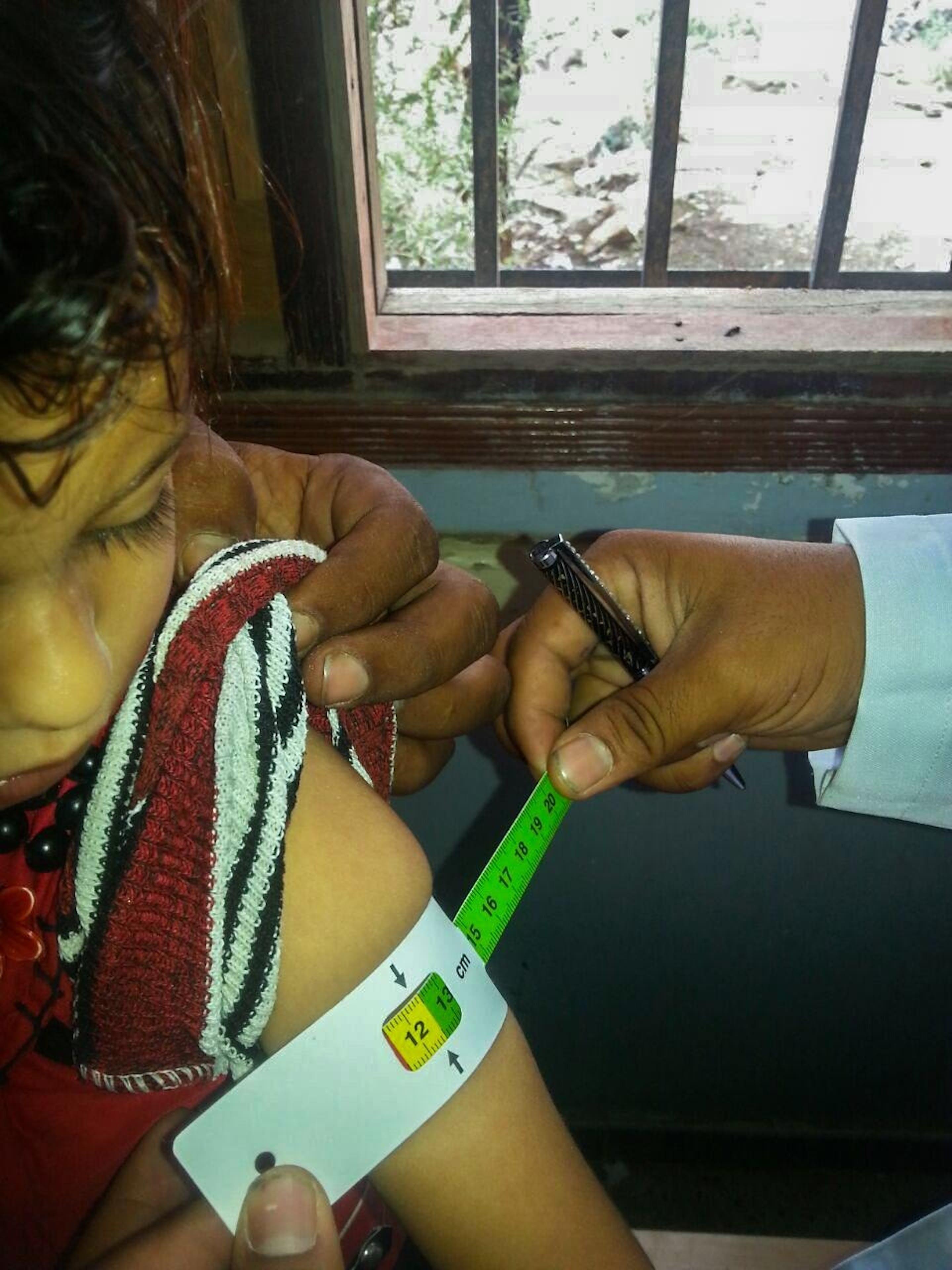 Controllo dello stato di malnutrizione di una bambina da parte dell'operatore di uno dei team sanitari mobili dell'UNICEF nel distretto di Al-Zaher (Yemen) - ©UNICEF/UNI187341/Alawi