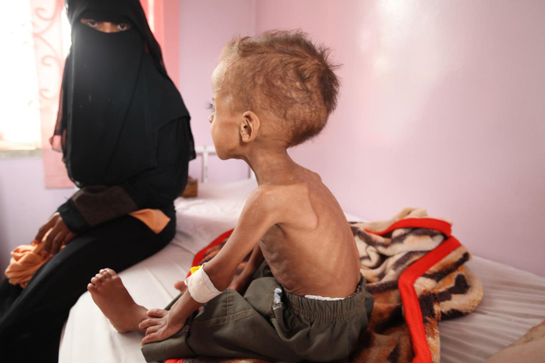 Faisal ha 18 mesi: da quando è iniziato il conflitto nello Yemen, 6 mesi fa, il suo peso è sceso da 12 a 5 chili. Faisal è in cura presso l'ospedale Al Sabeen di Sana'a, capitale dello Yemen - ©UNICEF/UNI191723/Yasmin