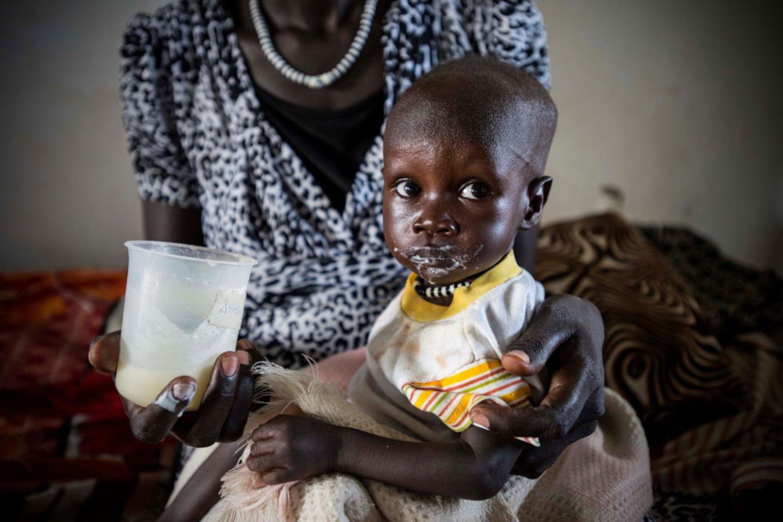 Ayen, 10 mesi, ricoverata per grave denutrizione nell'ospedale di Bor (Sud Sudan) sostenuto dall'UNICEF. Il suo peso è poco più di metà della media per la sua età - ©UNICEF/UNI198874/Rich