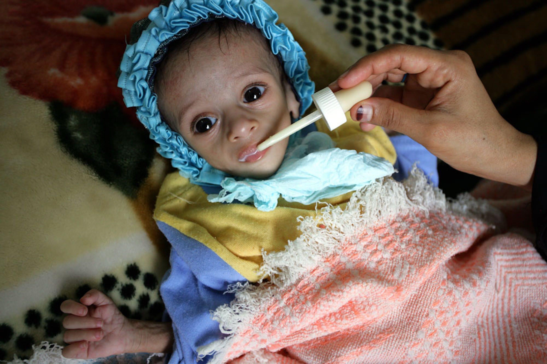 Nello Yemen in guerra, malnutrizione e malattie stanno provocando fra i bambini un numero di decessi molto più alto rispetto ai bombardamenti - ©UNICEF/UNI48543/Mohammed Mahmoud