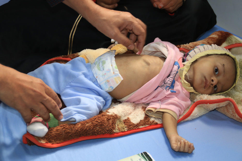 Un bambino ricoverato con prognosi di malnutrizione grave acuta nell'ospedale