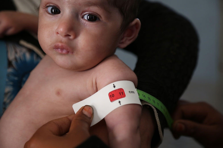 Il braccialetto MUAC rivela lo stato di malnutrizione grave acuta di questo bambino ricoverato nell'ospedale Ma'abar, nel governatorato di Dhamar (Yemen) - ©UNICEF/UN057346/Madhok
