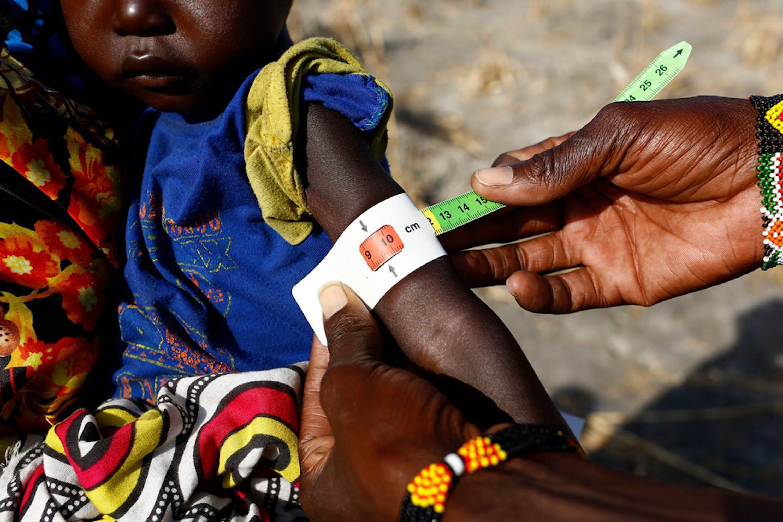 Nyalel, 2 anni, è affetta da uno stato di malnutrizione acuta grave, la più pericolosa di tutte. A evidenziarlo è il braccialetto MUAC che segna rosso - ©UNICEF/UN055444/Modola