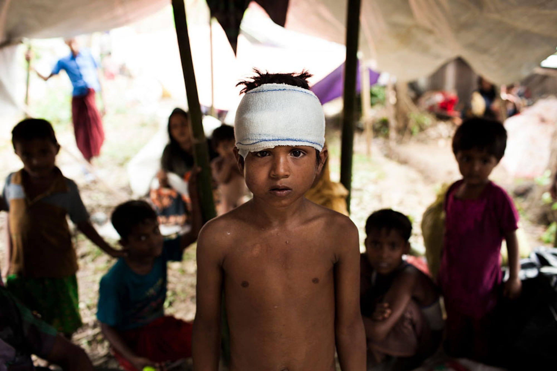 Mohammed, 8 anni, uno dei tantissimi bambini Rohingya arrivati bisognosi di cure mediche in Bangladesh - ©UNICEF/UN0119119/Brown