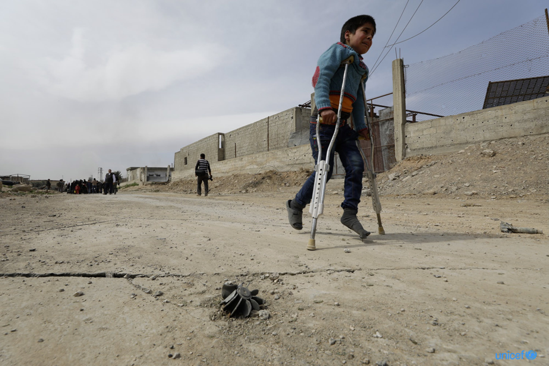 Un bambino ferito cammina con le stampelle verso la zona di evacuazione di Hamuriesh. Siria - © UNICEF/UN0185403/Sanadiki