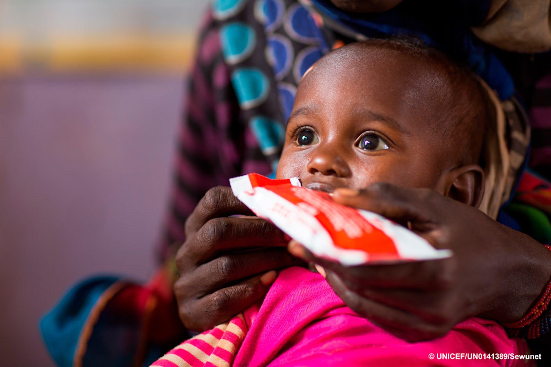 65/5000 Gemechu Teteche, 2 anni, si nutre di cibo terapeutico in Etiopia.