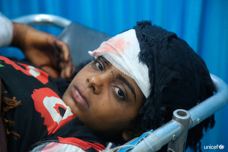 Yemen, una ragazza ferita viene curata all'ospedale Al Thawra di Hodeidah - © UNICEF/UN0216979/Ayyashi