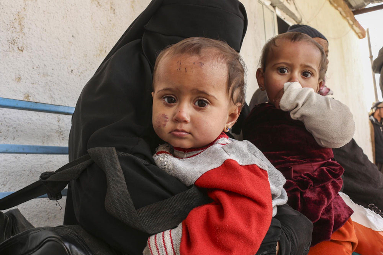 Come migliaia di altri sfollati Halima ha viaggiato a piedi per oltre cento chilometri con Hasnaa e Hawraa, gemelli di 9 mesi, prima di raggiungere il campo di Al-Hol, nel nord-est della Siria - ©UNICEF/UN0284902/Hasen