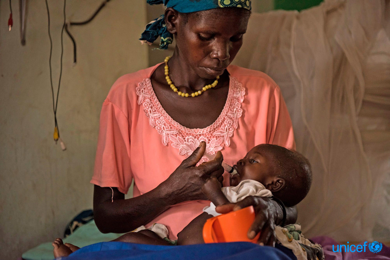 Jane Tiko  nutre con un alimento terapeutico suo figlio di nove mesi Simon Ladok nel reparto nutrizionale nell'ospedale pediatrico di Al-Sabbah a Juba, Sud Sudan - © UNICEF/UN067946/Hatcher-Moore