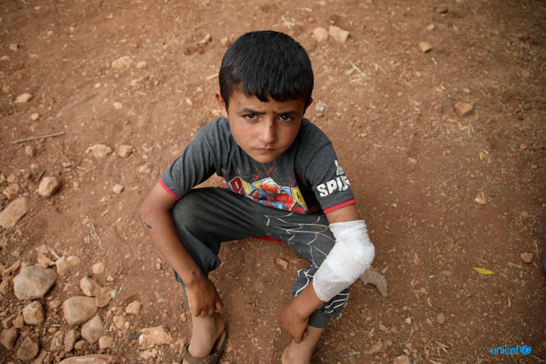 © UNICEF/UN0318500/Watad