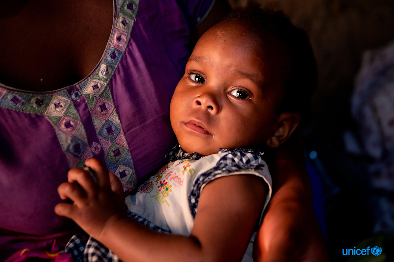 Lighton, 1 anno, è nata sieropositiva. La mamma le somministra ogni giorno una dose pediatrica di farmaco antiretrovirale, che sta ottenendo ottimi risultati nel mantenere bassa la carica virale dell'HIV -  © UNICEF/UNI211836/Schermbrucker