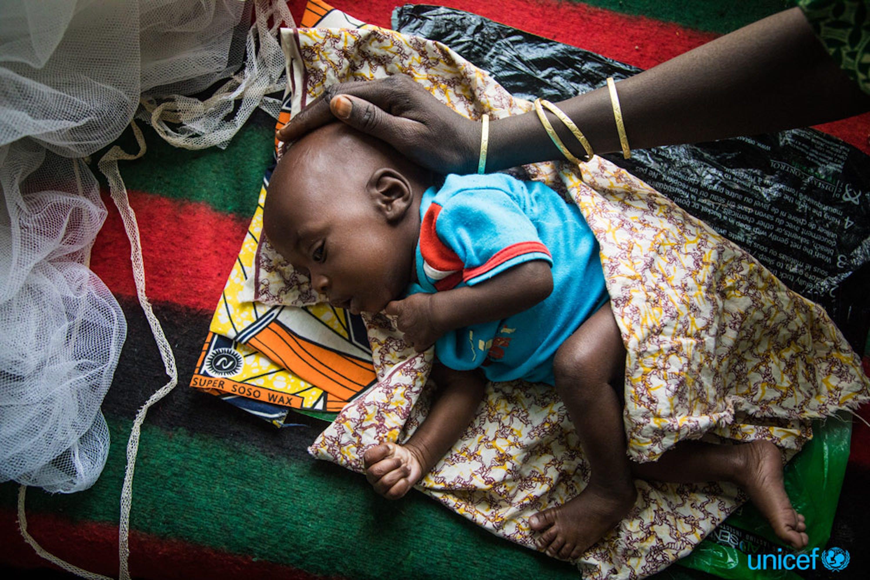 Una donna accarezza la testa del suo bambino che dorme malnutrito al centro materno e infantile della città di Diffa, in Niger -   © UNICEF/UN055334/Tremeau