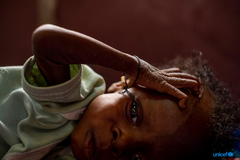 © UNICEF/UN0239473/Gilbertson VII Photo