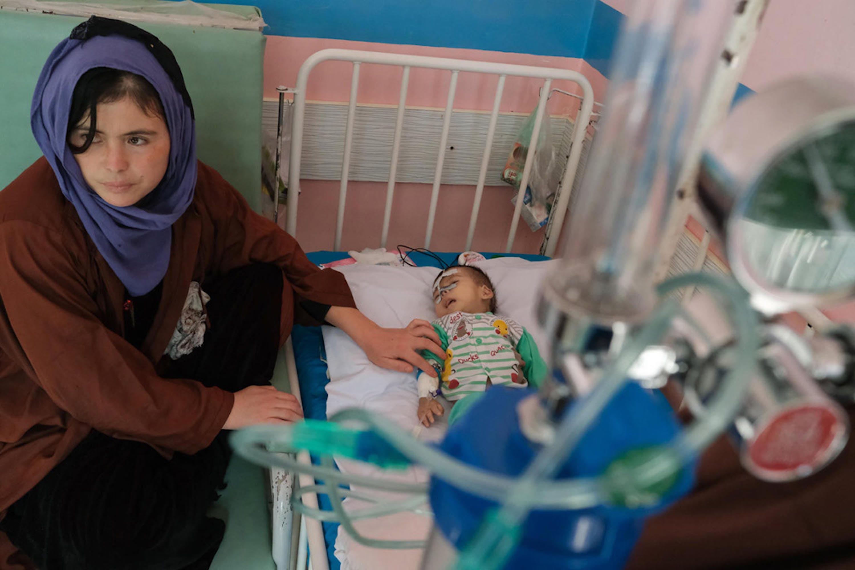 Adela, 25 anni, assiste suo figlio Ali Mehran, 4 mesi, affetto da malnutrizione grave acuta, in nell'ospedale pediatrico di Kabul