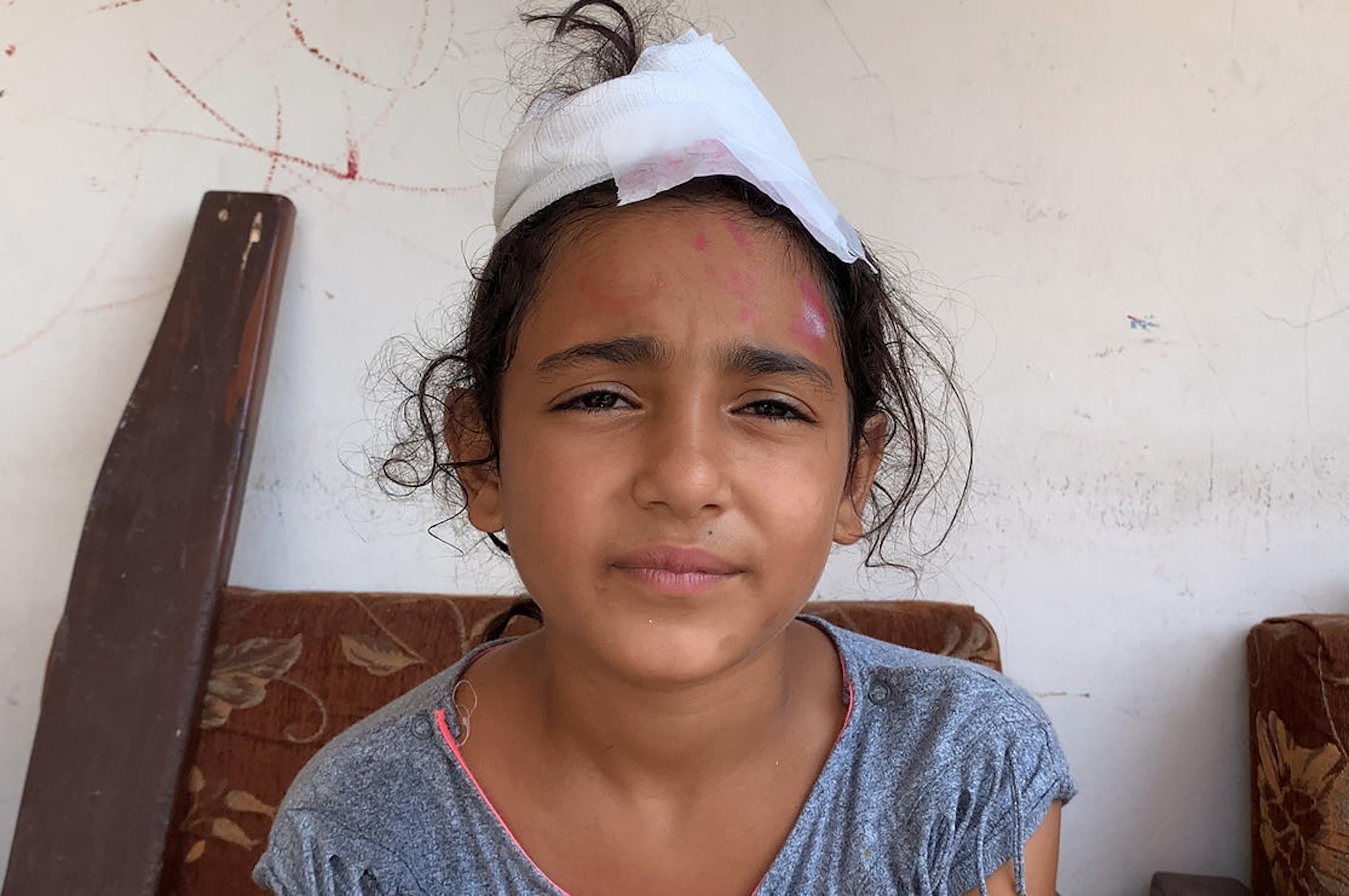 Mira, 10 anni, è rimasta ferita alla testa mentre si trovava nella sua abitazione a Beirut (Libano), il giorno della terribile esplosione nel porto - ©UNICEF/UNI360451/El Hage