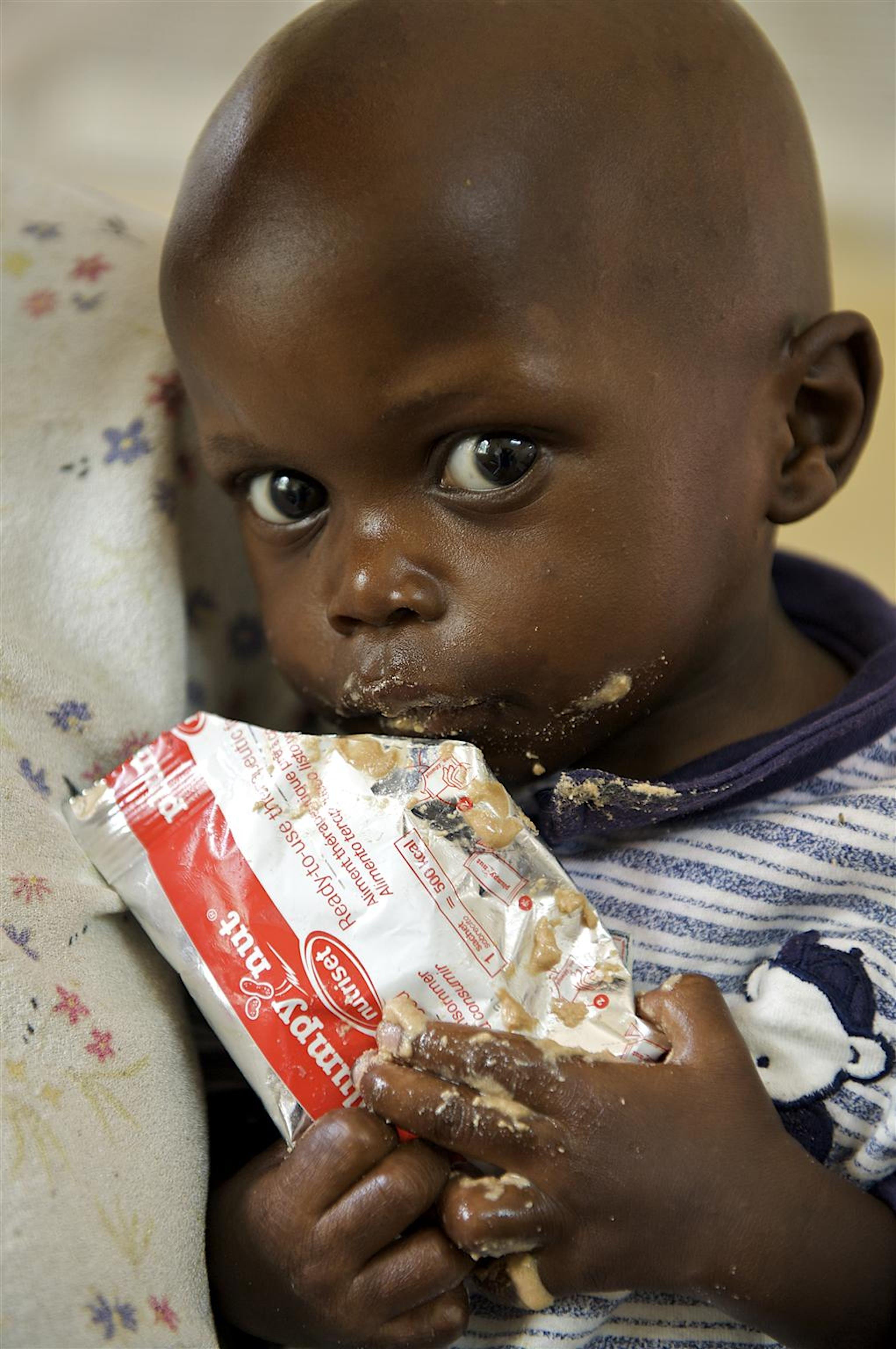 Un bambino con una razione di Plumpynut, alimento terapeutico pronto per l'uso, nel reparto per malnutriti gravi dell'ospedale di Arua (Uganda) - ©UNICEF/HQ2010-1521/S.Noorani