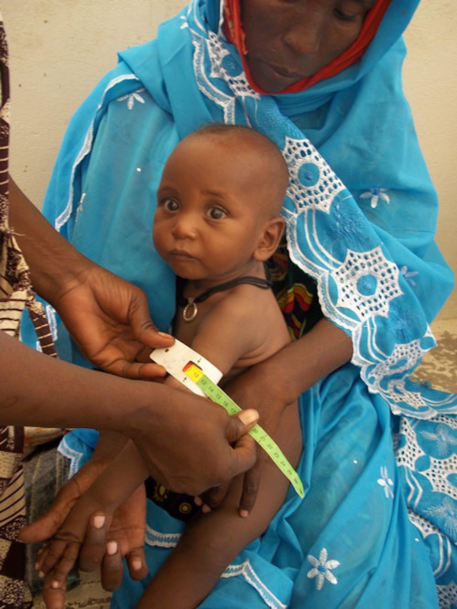 A questo bambino, in braccio alla mamma, viene misurata la circonferenza del braccio come indicatore della malnutrizione. ©Saira Cutrone
