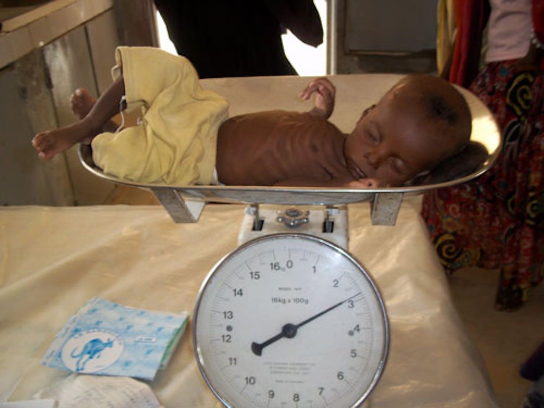 Questo bambino viene pesato su una bilancia fornita dall'UNICEF. ©Saira Cutrone