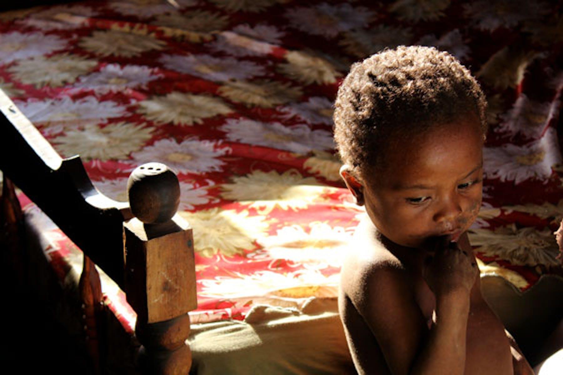 Bambino malnutrito. Carlotta Moratt©