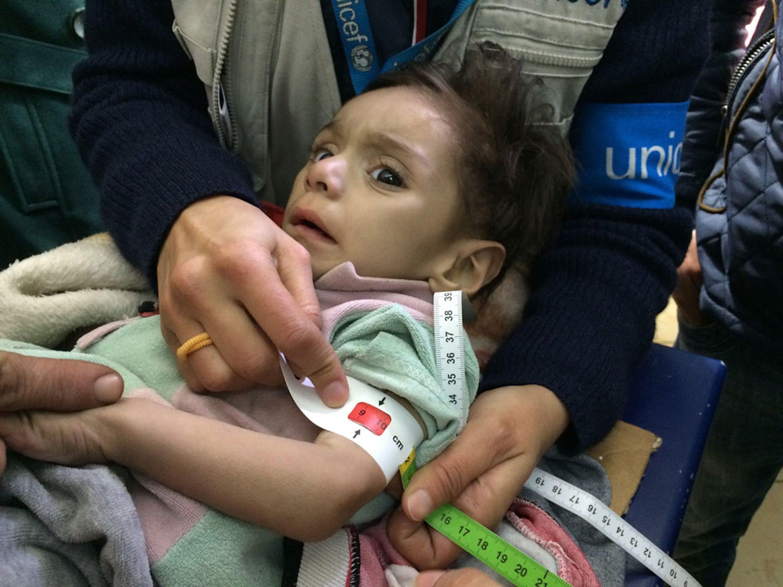 Una bambina viene visitata nell'ospedale di Madaya dagli operatori umanitari appena entrati in città. Il colore rosso del braccialetto MUAC non lascia dubbi sulla sua gravissima forma di denutrizione - ©UNICEF/UN07558/Singer