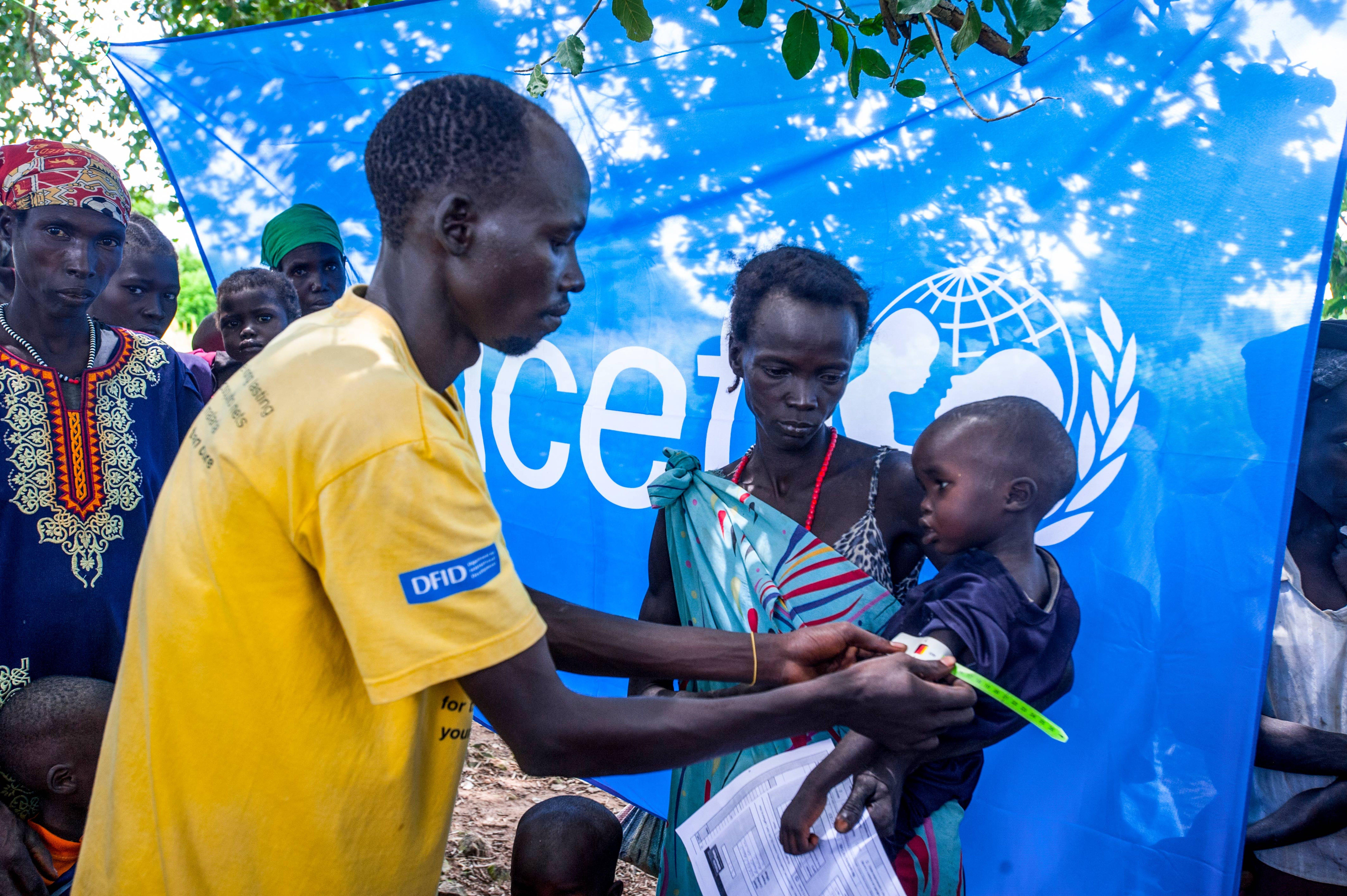 Un bambino viene sottoposto a screening per la malnutrizione in un centro sanitario sostenuto dall'UNICEF ad Aweil, nel Sud Sudan.