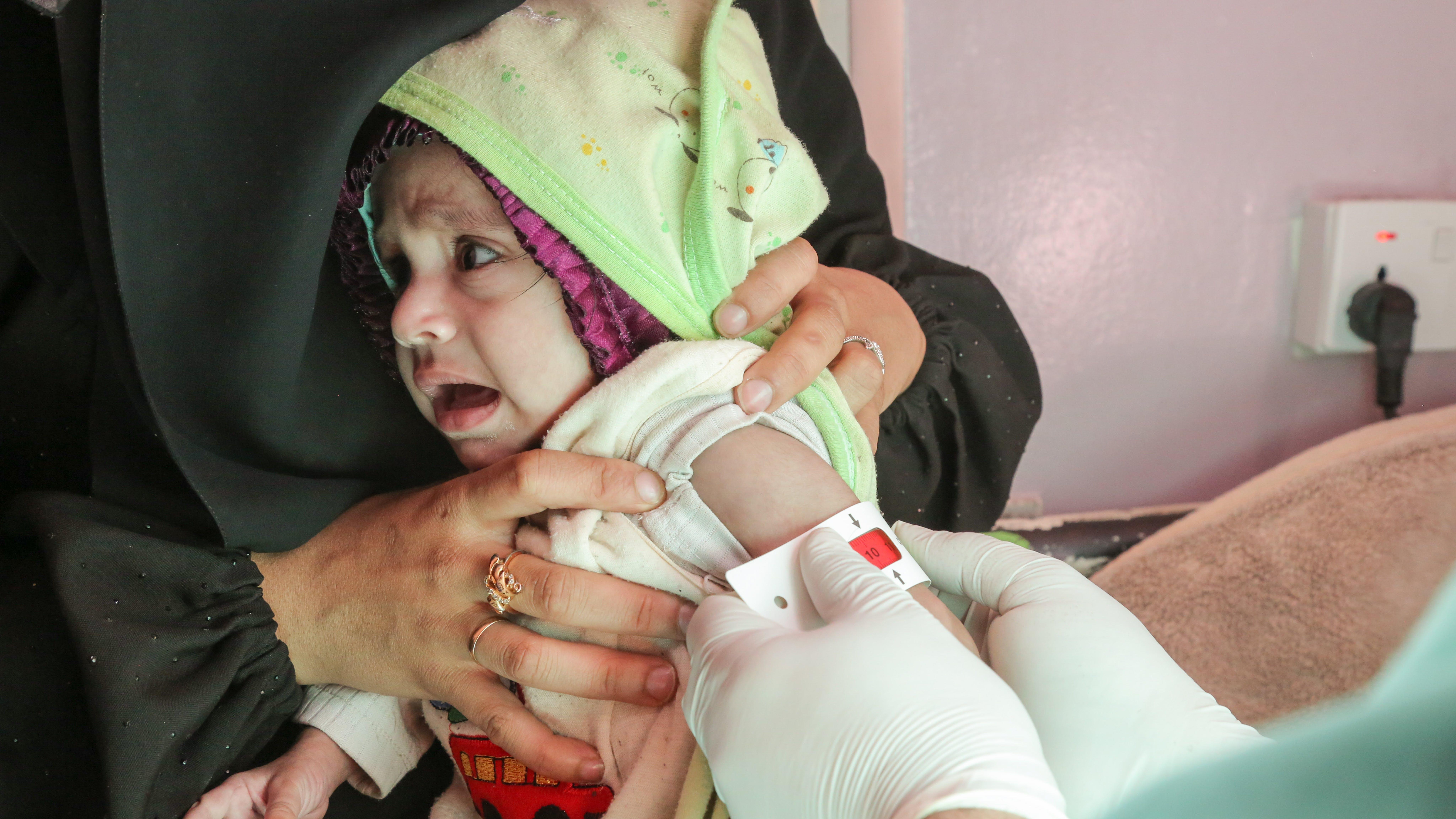 La piccola bambina Rawabi Mutahar Ahmed Hassan, 7 mesi, mentre le viene misurata la circonferenza del braccio (MUAC) per determinare se è gravemente malnutrita, presso l'ospedale Al-Sabeen sostenuto dall'UNICEF a Sana'a, nello Yemen.