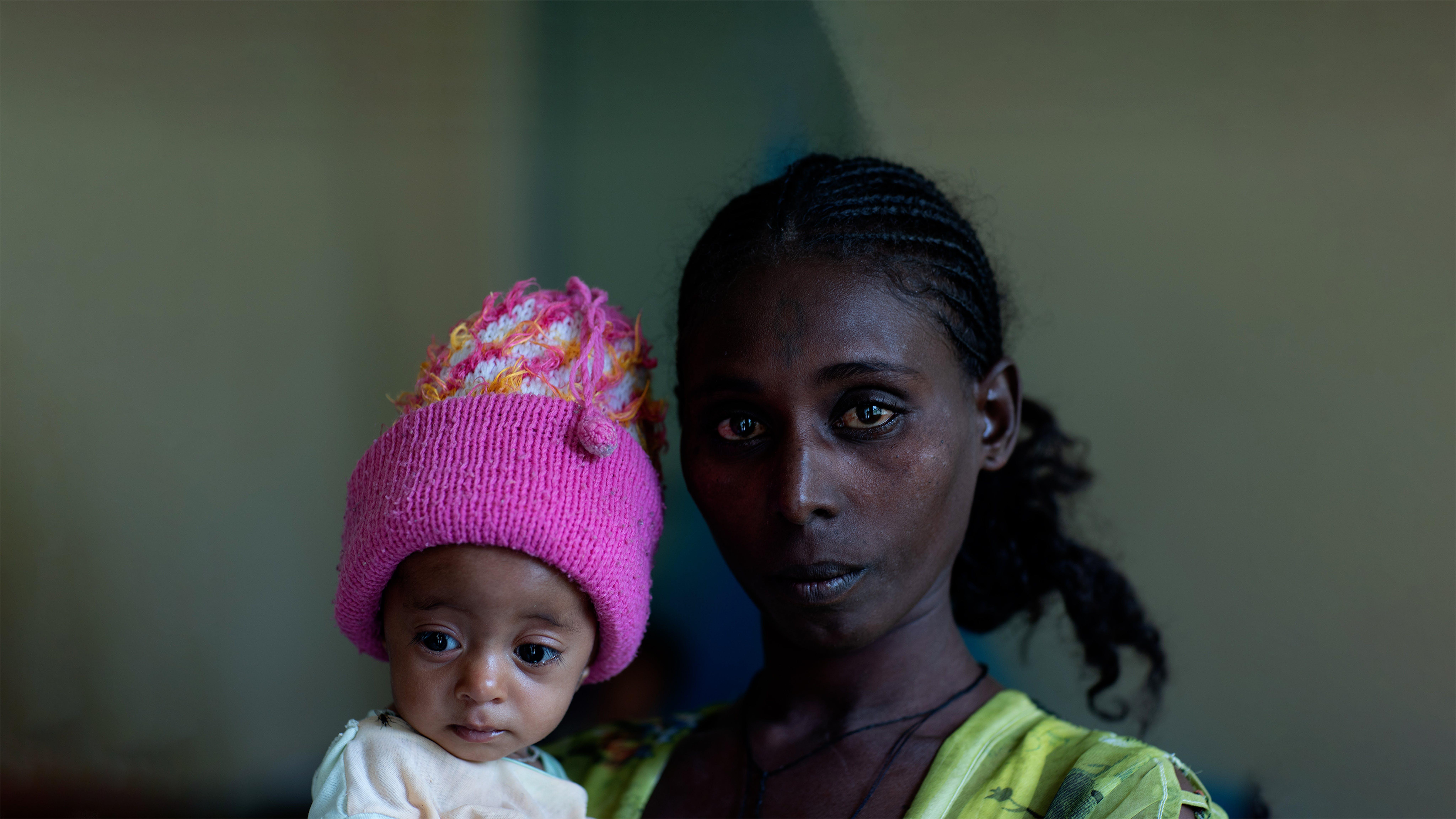 Etiopia, Yeshialem Gebreegziabher, 27 anni, tiene in braccio sua figlia, Kalkidan Yeman, di 6 mesi, che soffre di malnutrizione presso il centro Aby Adi Health nella regione del Tigray