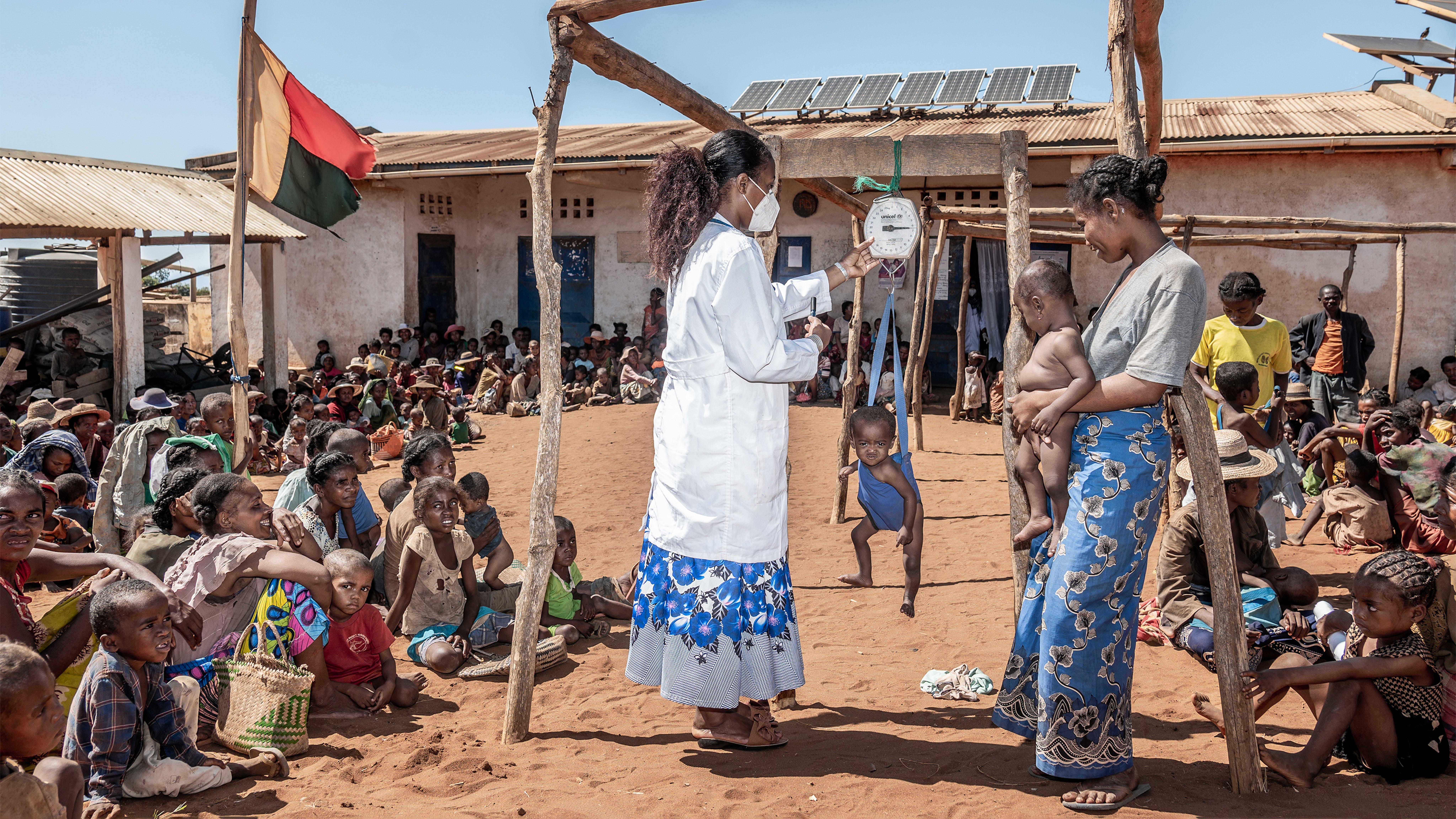 Madagascar, screening per verificare lo stato della malnutrione