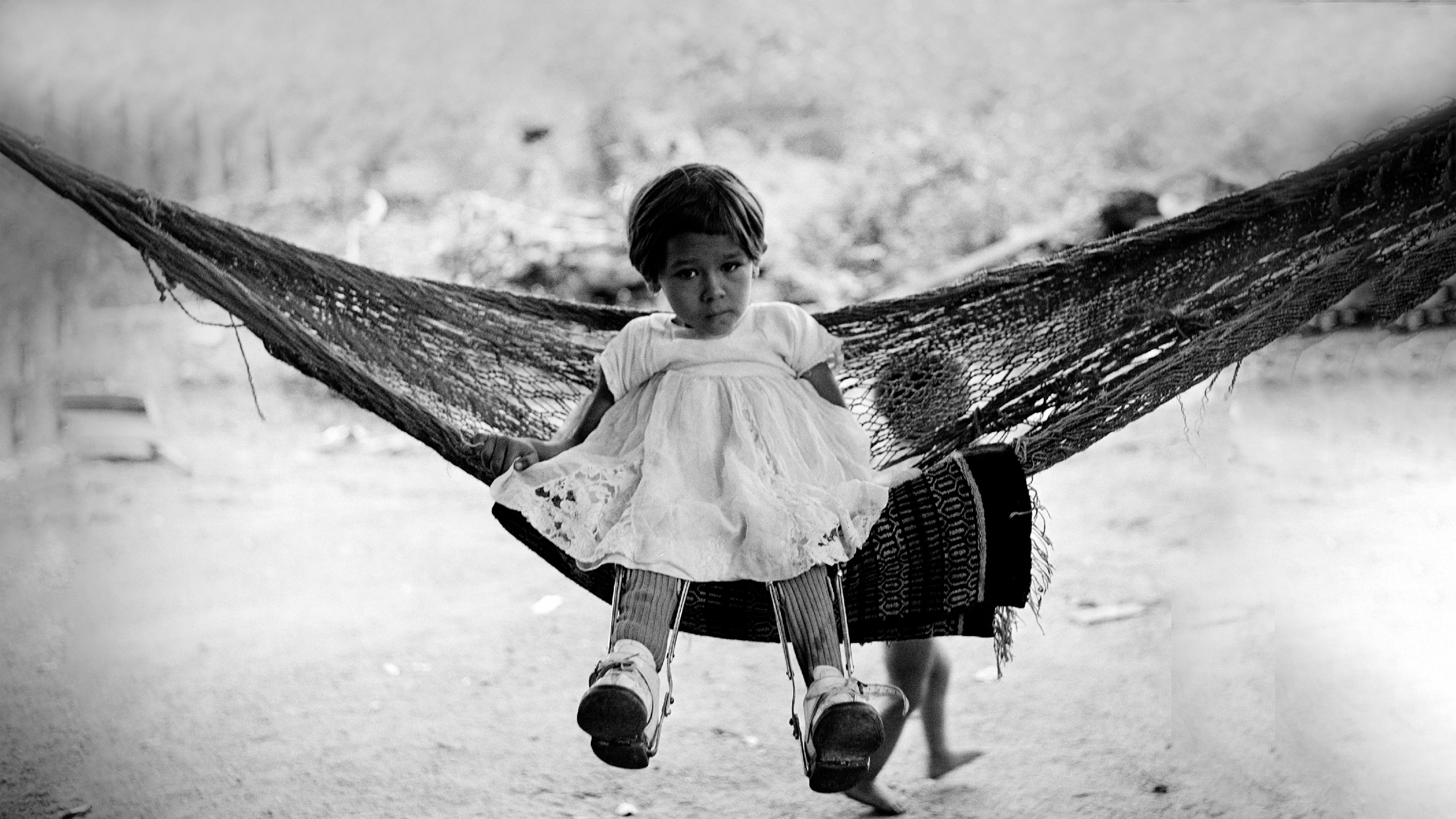 Messico, 1960: Concepcion Uribe, 3 anni, indossa tutori per le gambe per sostenere i suoi arti indeboliti dalla poliomielite