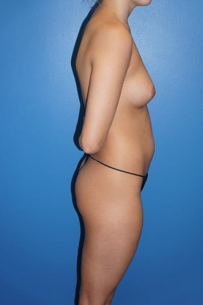 Breast Augmentation by Fat Transfer Gallery - Patient 5226455 - Image 1