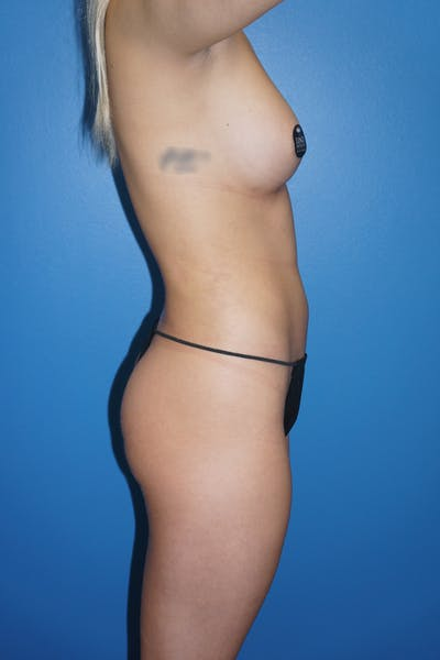 Breast Augmentation by Fat Transfer Gallery - Patient 5226455 - Image 2
