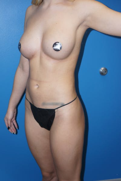 Breast Augmentation by Fat Transfer Gallery - Patient 5226455 - Image 4