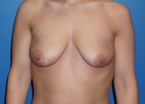 Breast Lift Gallery - Patient 5226469 - Image 1