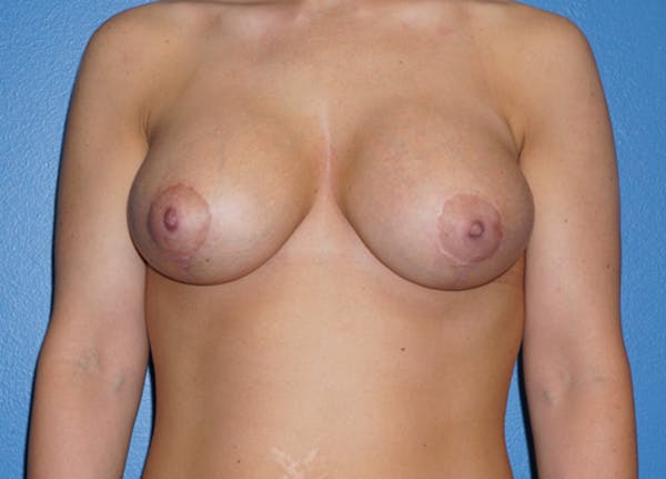 Breast Lift Gallery - Patient 5226469 - Image 2