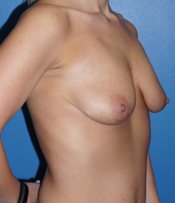 Breast Lift Gallery - Patient 5226469 - Image 3