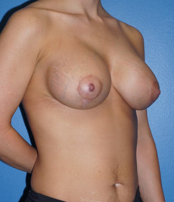 Breast Lift Gallery - Patient 5226469 - Image 4