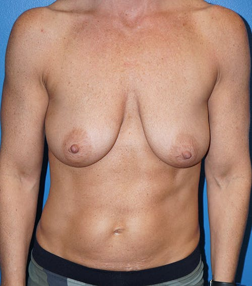 Breast Lift Gallery - Patient 5226471 - Image 1