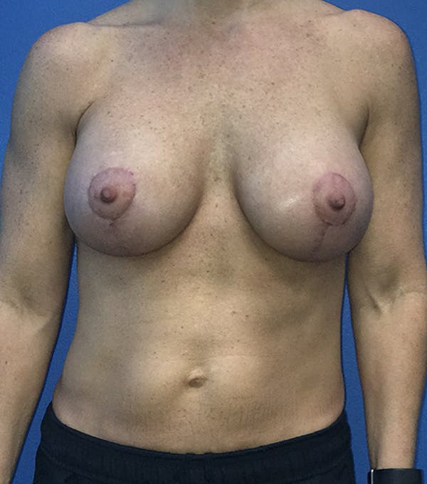 Breast Lift Gallery - Patient 5226471 - Image 2