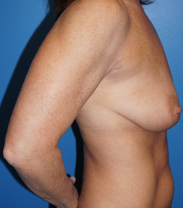Breast Lift Gallery - Patient 5226471 - Image 3