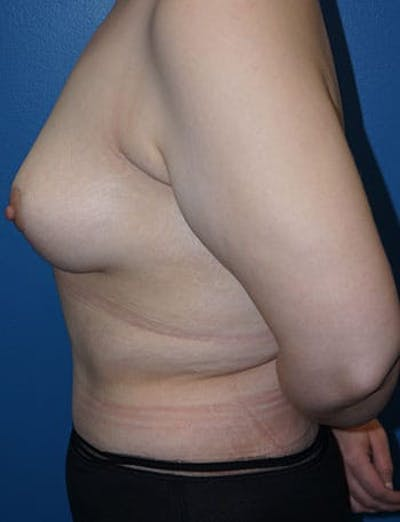 Breast Lift Gallery - Patient 5226472 - Image 1