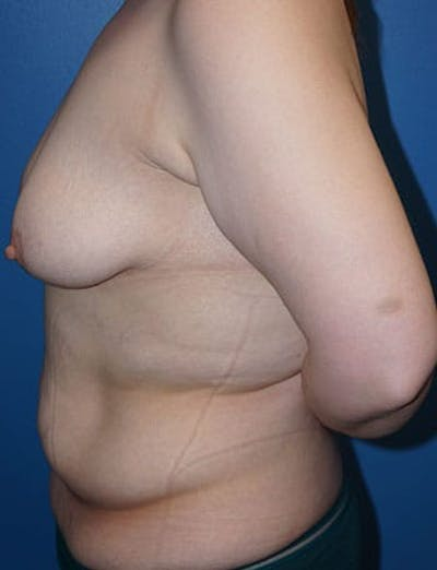 Breast Lift Gallery - Patient 5226472 - Image 2