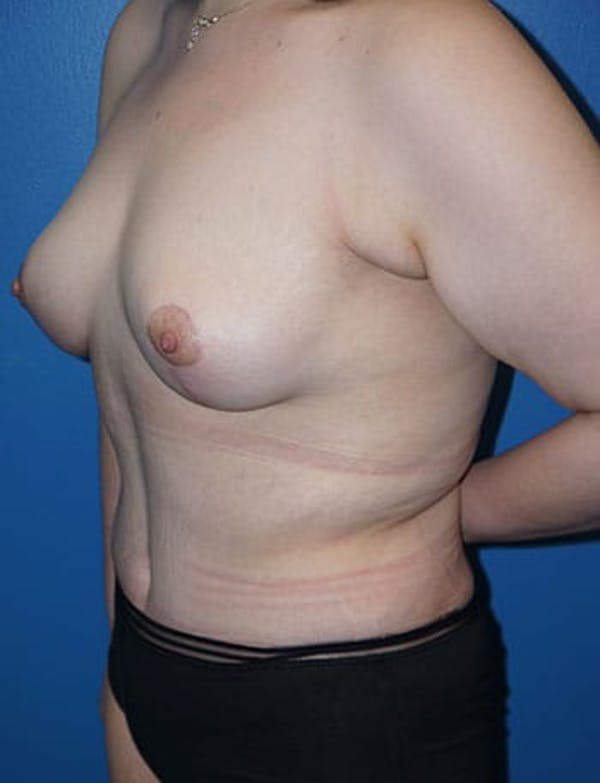 Breast Lift Gallery - Patient 5226472 - Image 3