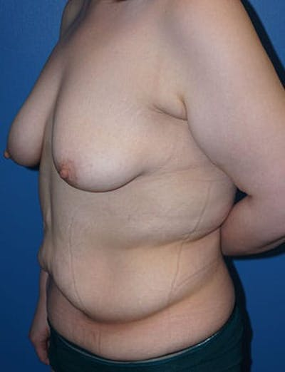 Breast Lift Gallery - Patient 5226472 - Image 4