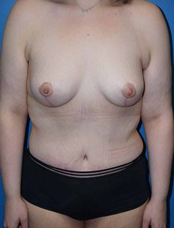 Breast Lift Gallery - Patient 5226472 - Image 5