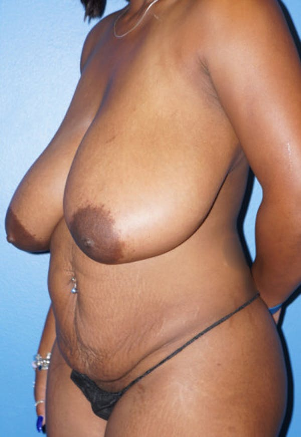 Breast Reduction Gallery - Patient 5226480 - Image 1