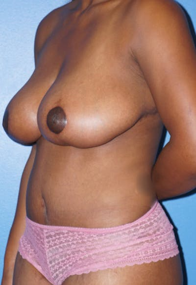Breast Reduction Gallery - Patient 5226480 - Image 2