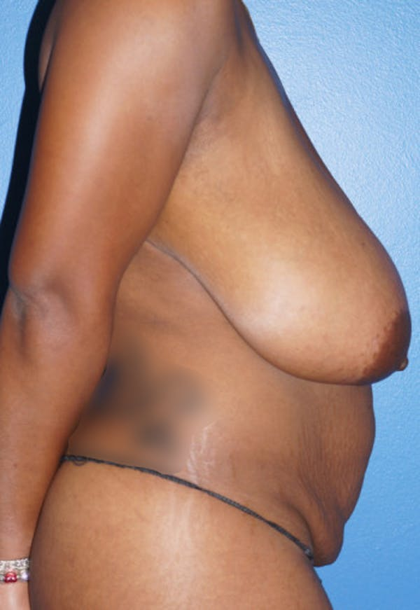 Breast Reduction Gallery - Patient 5226480 - Image 3
