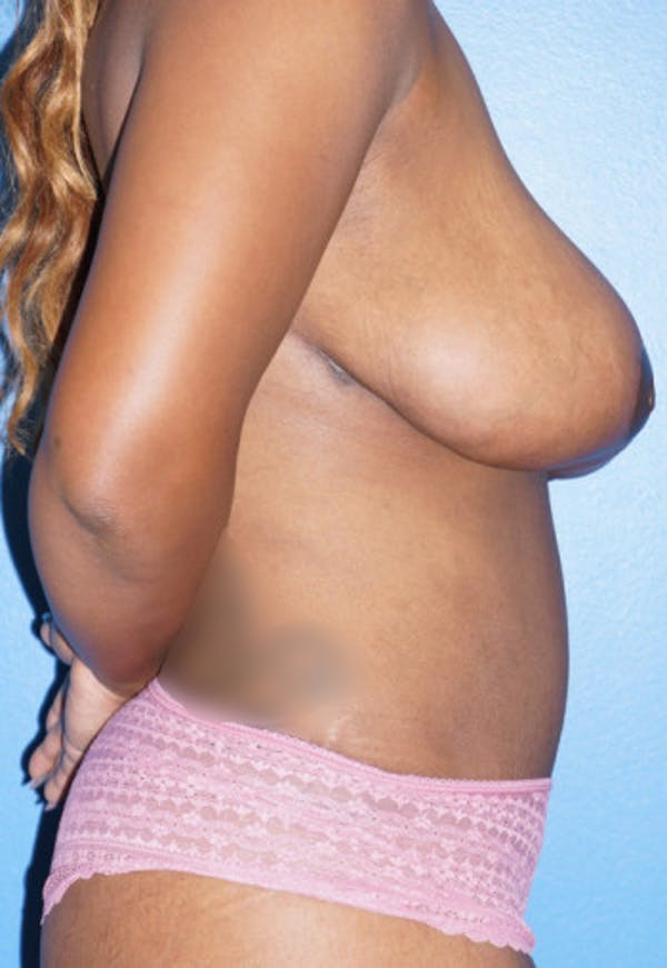 Breast Reduction Gallery - Patient 5226480 - Image 4